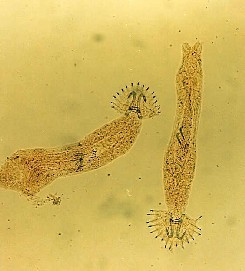 Laxparasiten Gyrodactylus salaris sett genom ett mikroskop.